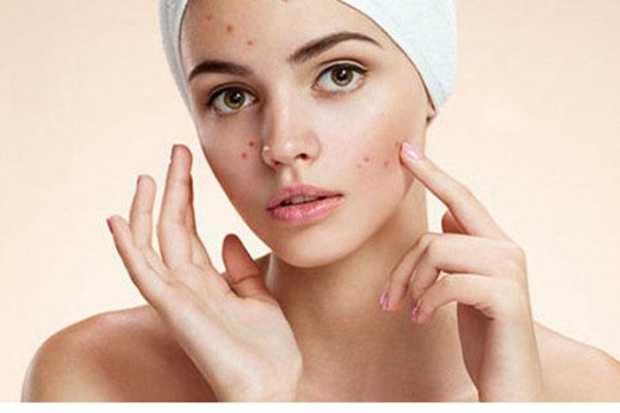 Foto: Internet. Hay alimentos que puedan ocasionarte acné.